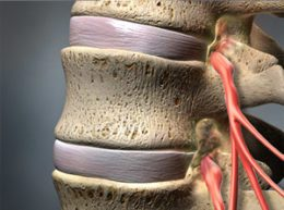 spinal stenosis - pain management clinic