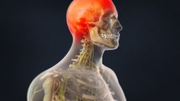 Occipital Neuralgia