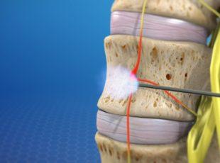 Selective Nerve Root Block