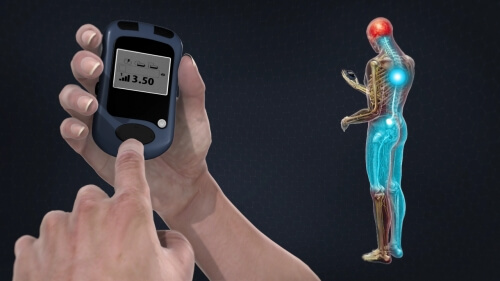 Spinal Cord Stimulator