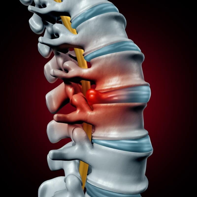 Could You Have a Herniated Disk? Symptoms and Diagnosis