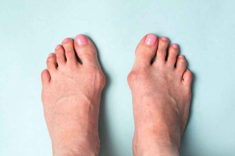 hallux rigidus, arthritis of the big toe