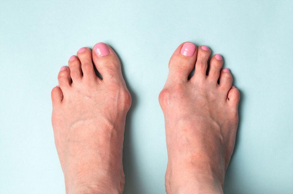 arthritic symptoms in big toe