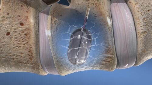 Vertebroplasty/Kyphoplasty