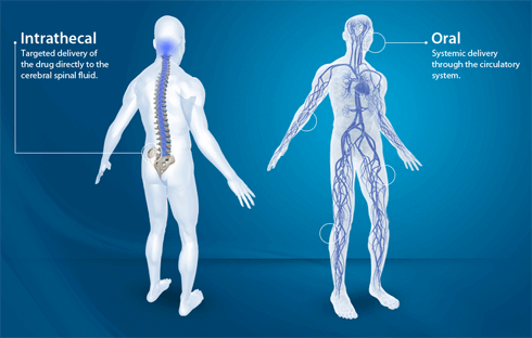 Pain Pump, Targeted Drug Delivery for Chronic Back Pain