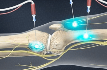Genicular Nerve Radiofrequency Ablation