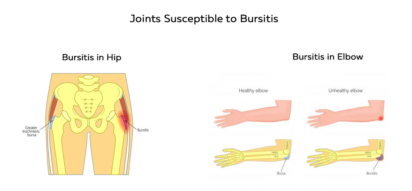 Bursitis in hip and elbow joints