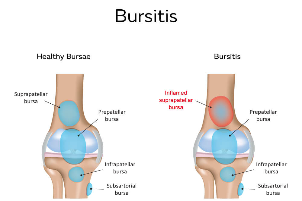 Healthy bursae and bursitis