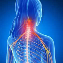 Pinched Nerve (Cervical Radiculopathy).