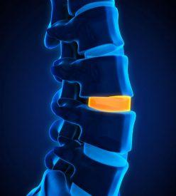Degenerative Spinal Disc Disease