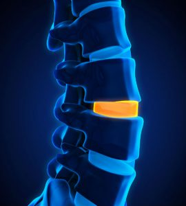 Degenerative Spinal Disc Disease Degenerative Disc Disease
