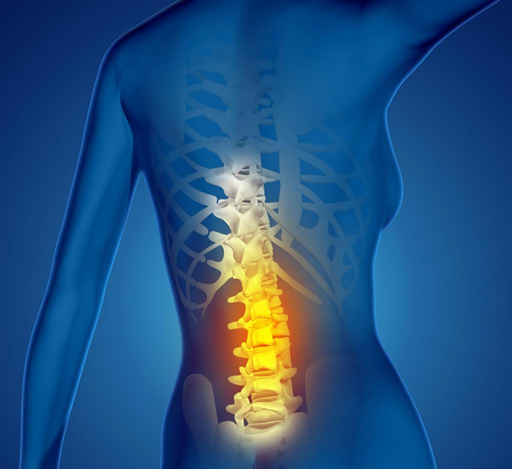 Discogenic Back Pain