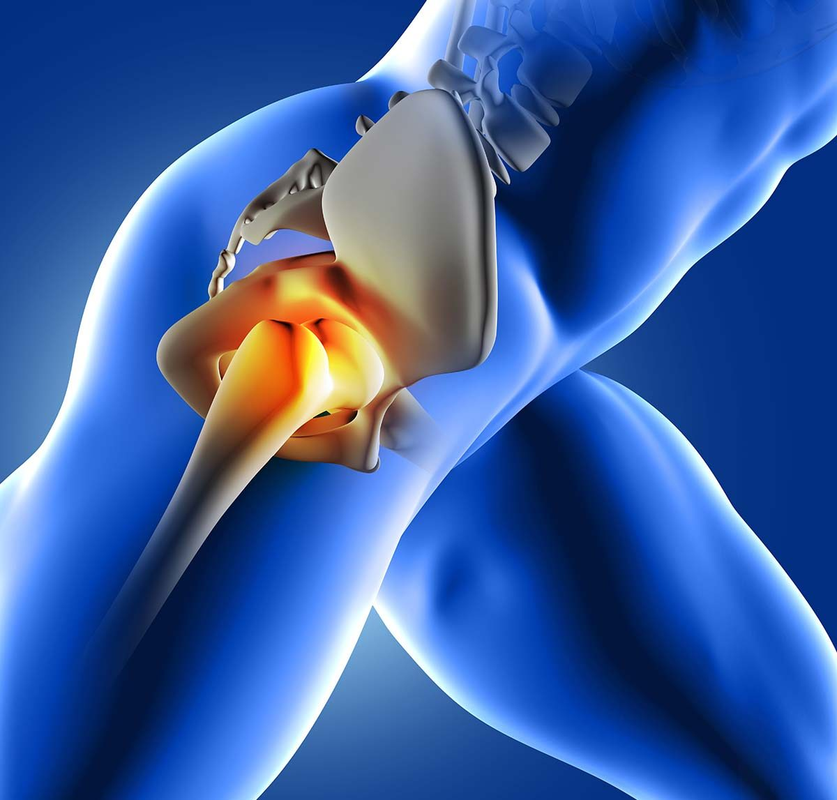 Hip Joint Arthritis