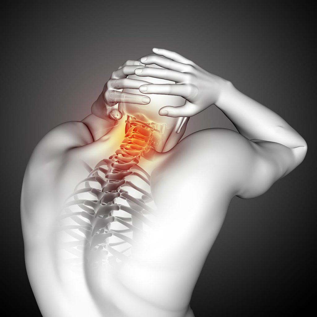 Myofascial Pain Syndrome (MPS)