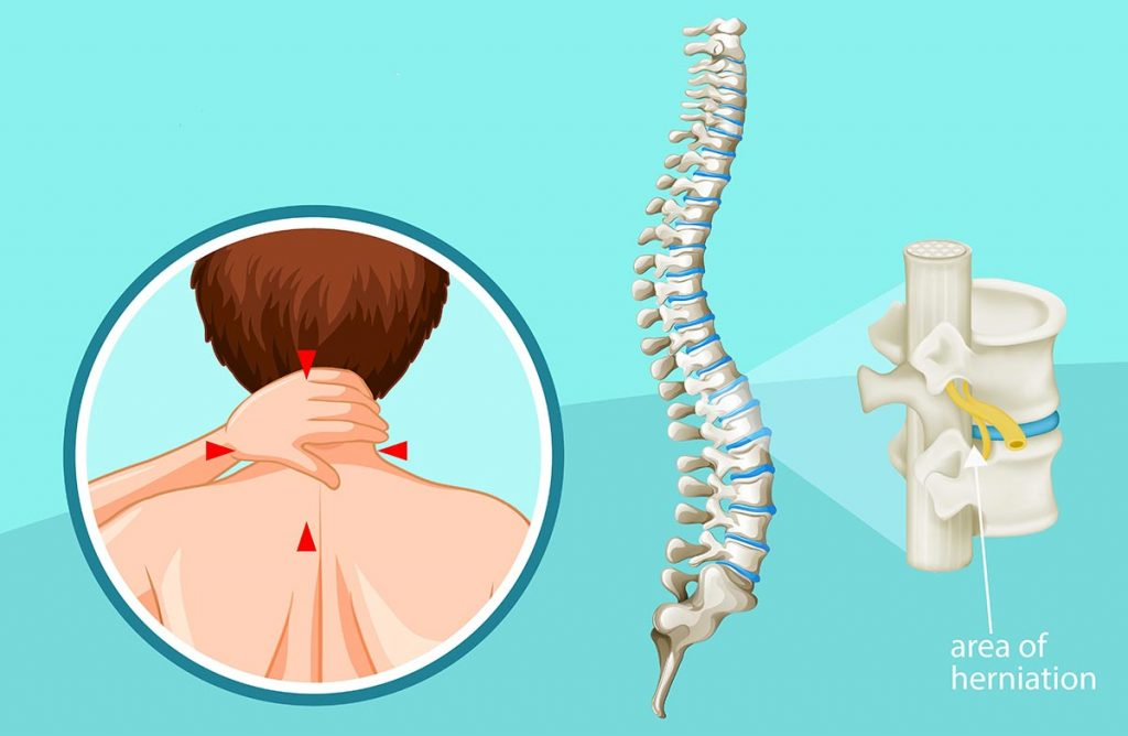 Pinched Spinal Nerve (Cervical Radiculopathy)