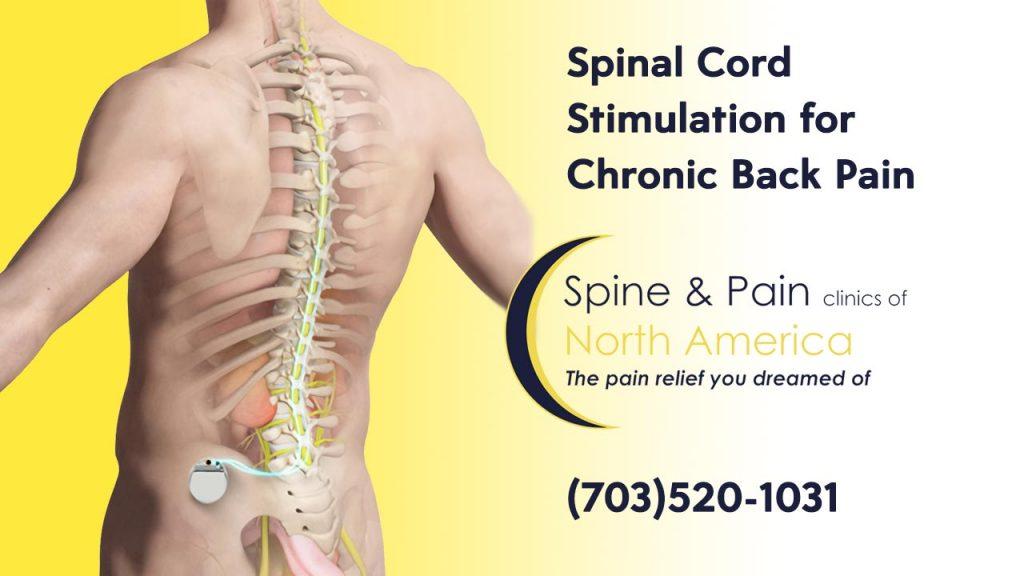spinal cord stimulation sapnamed.com