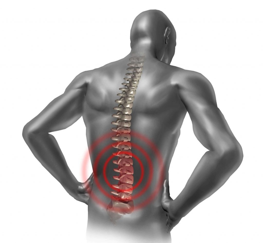 back pain arthropathy
