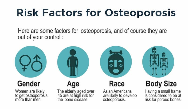 Risk Factors for Developing Osteoporosis