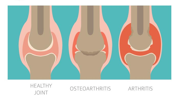 Rheumatoid Arthritis and Osteoarthritis: What are the Main Differences?