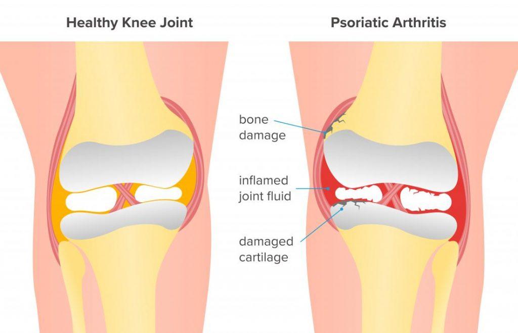 What Triggers Arthritis Flare Ups Sapna Pain Management