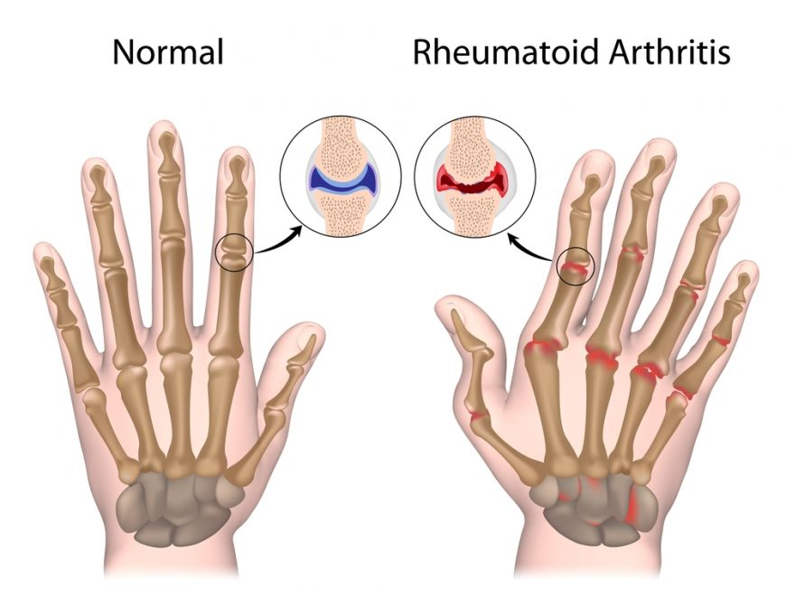 What Triggers Arthritis Flare Ups?