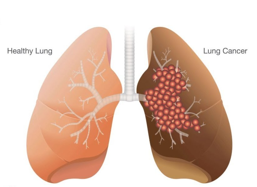 healthy-lung-lung-cancer