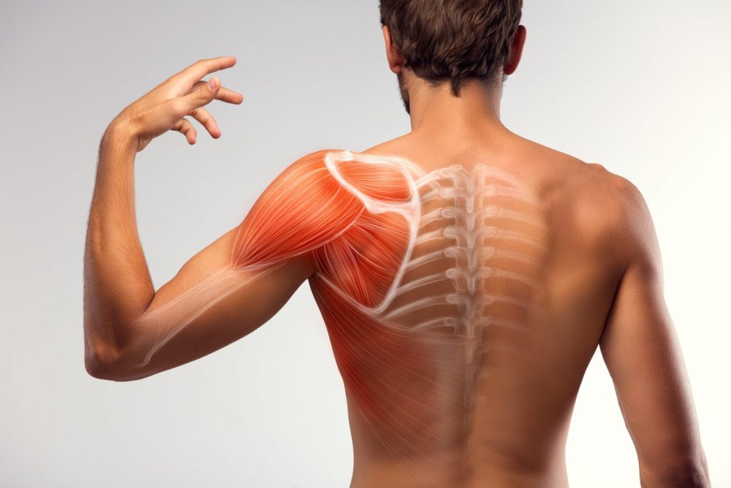 muscle-strains