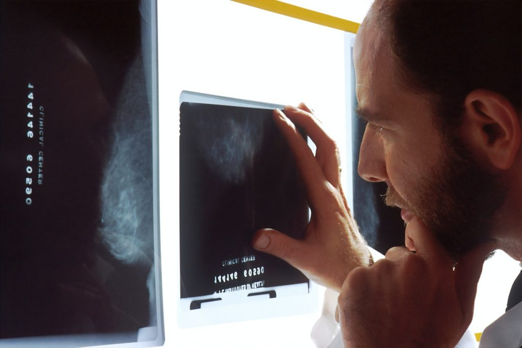 x ray identifies issues with the vertebrae and joints that comprise the spine