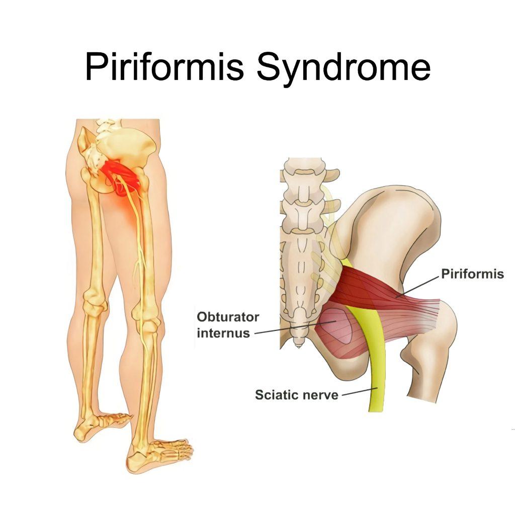 piriformis syndrome fairfax dulles pain center sapnamed.com