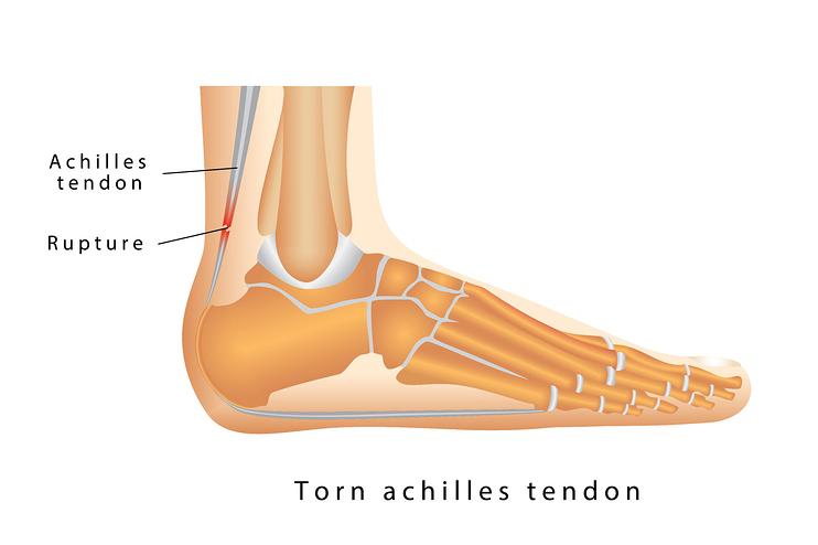 achilles tendon rupture