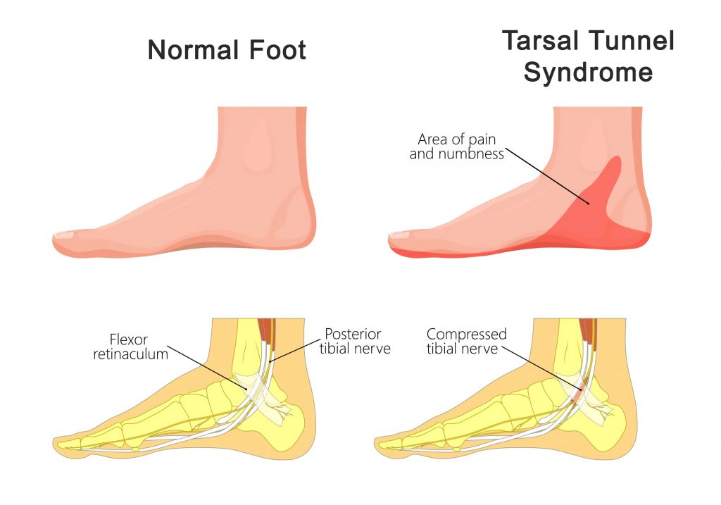 normal foot tarsal tunnel syndrome sapnamed.com